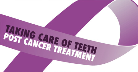 Caring for teeth post cancer graphic