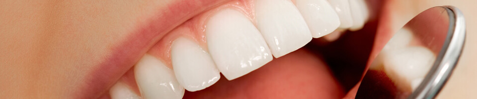 Closeup of bright white teeth - Dental crowns in Paxton, MA