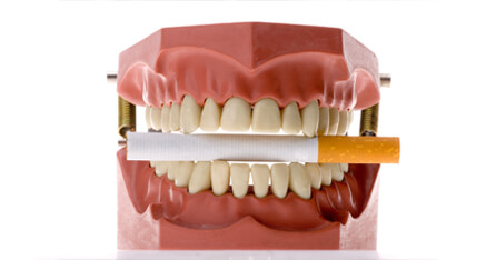What smoking does to teeth graphic