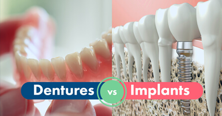 Dentures vs Implants graphic