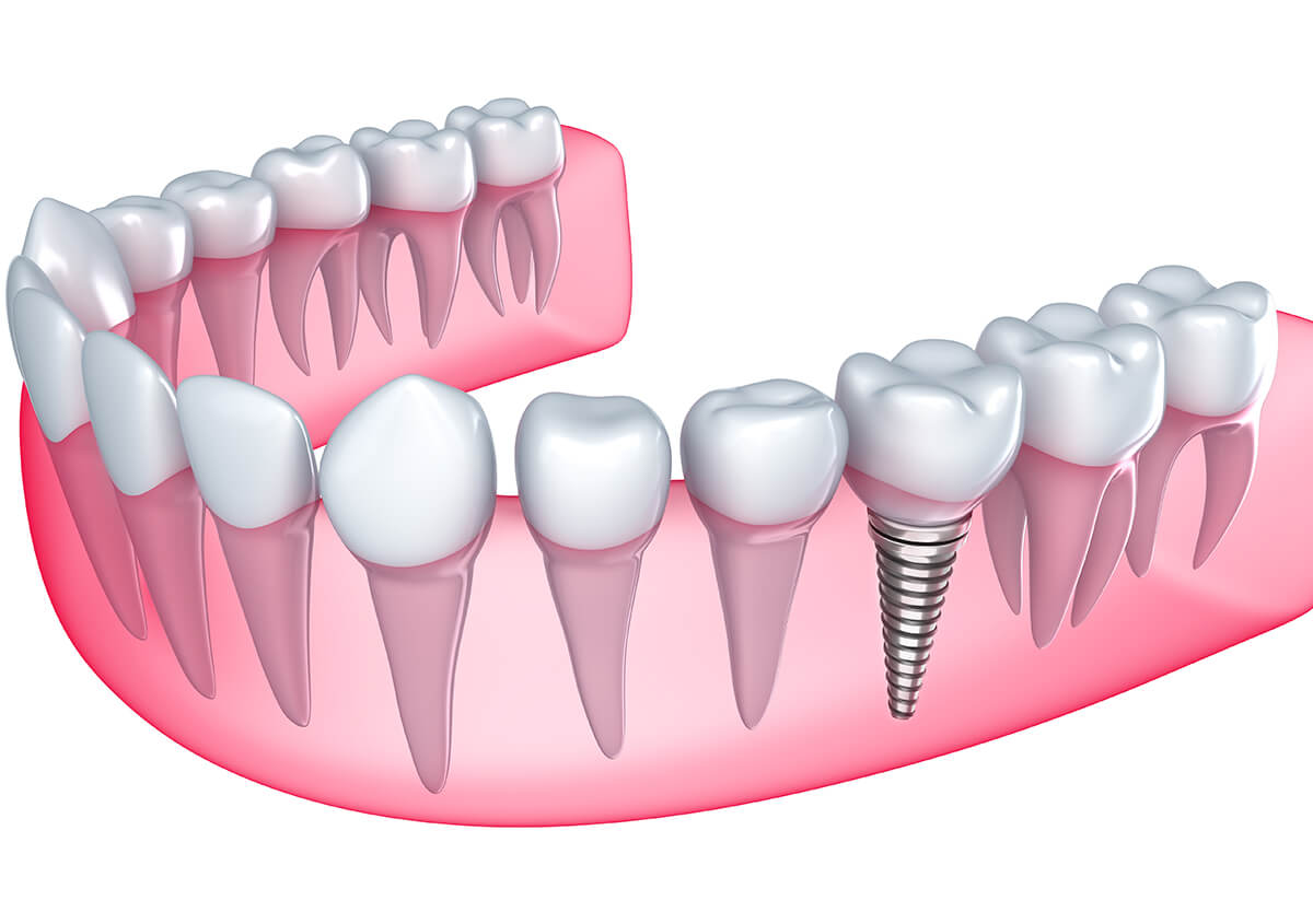 Discover the Benefits of Dental Implants for Missing Teeth in Paxton, MA Area